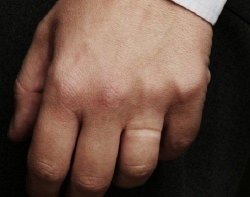 В Полярных Зорях грабитель сорвал с мужчины обручальное кольцо